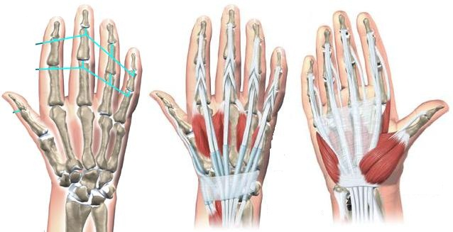 Treatments of the Hand