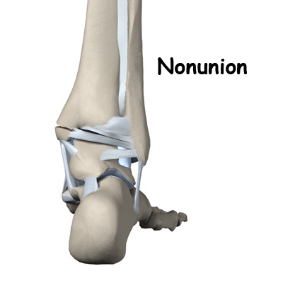 Treatment of Fractures that do not unite (Non-union)